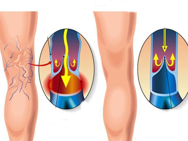 visszér kezelése sao készítmények visszér a lábakon