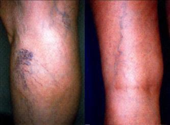 Visszerek és lymphostasis (vizsgálat és kezelés)