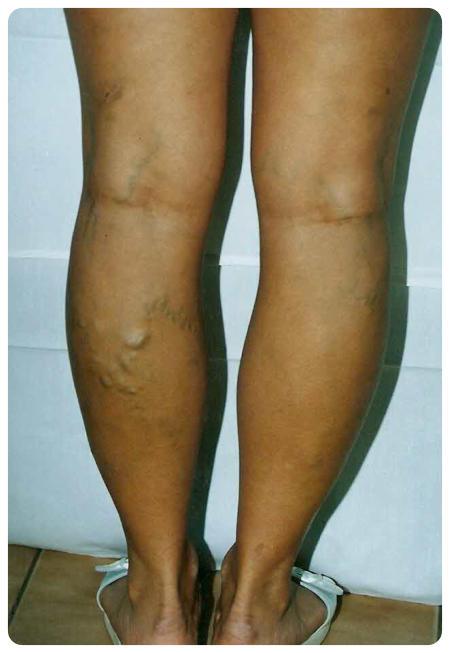 mennyi rehabilitáció a visszér műtét után