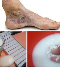 a lábakon lévő visszerek kezelése népi módon