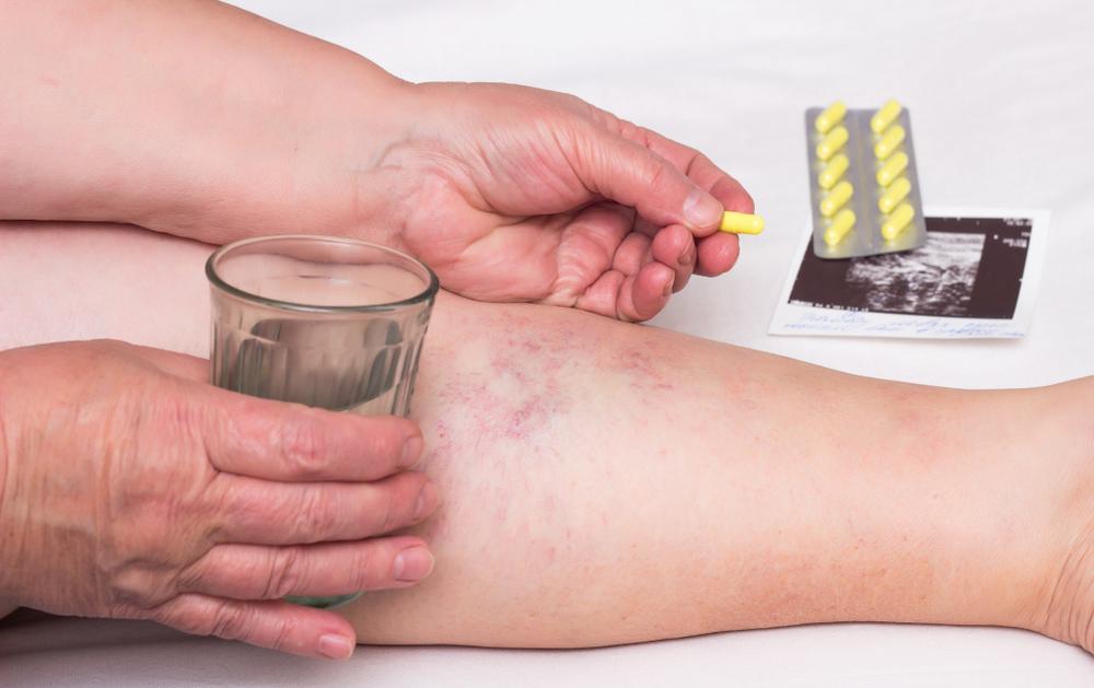 visszér tünetek alternatív kezelési módszerek)