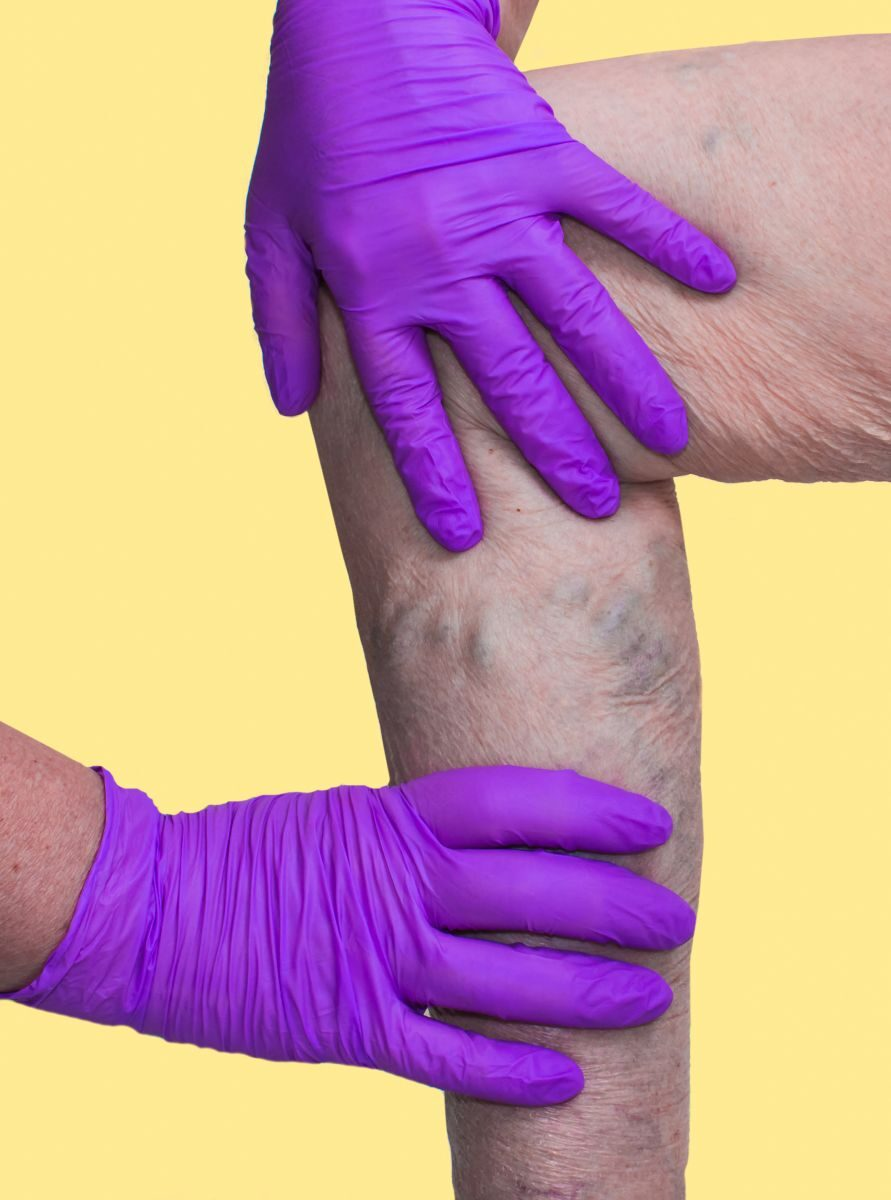 Az ödémás láb kezelése | Érsebészet, lézeres és rádiófrekvenciás visszérkezelés – VP-Med Kft.