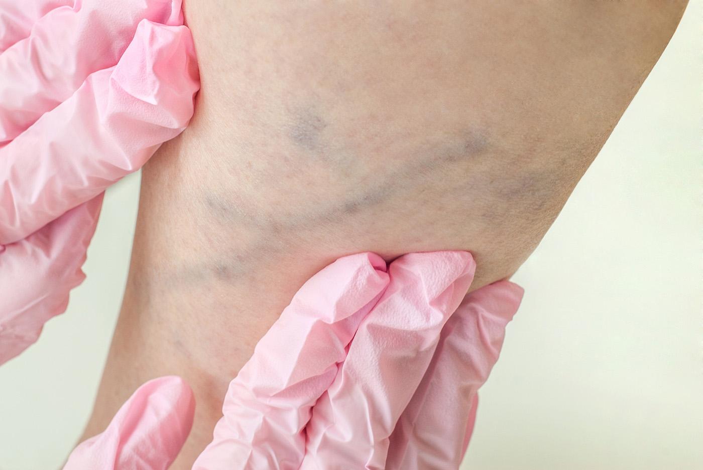 vénás trombózis kezelése visszérrel