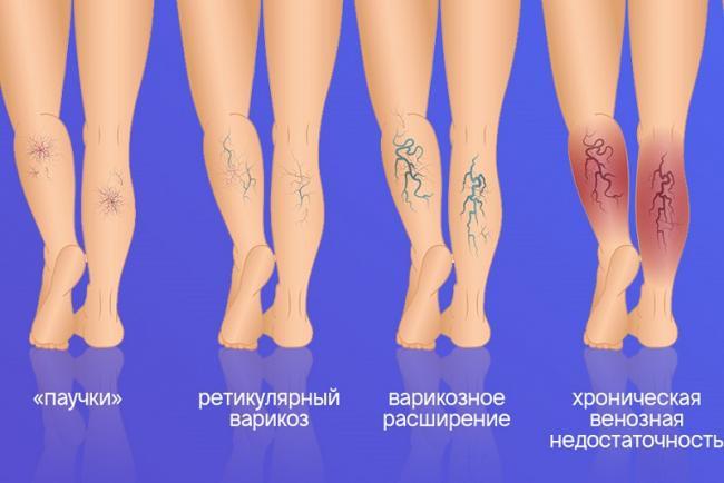 visszér kezelése kapszulákkal)