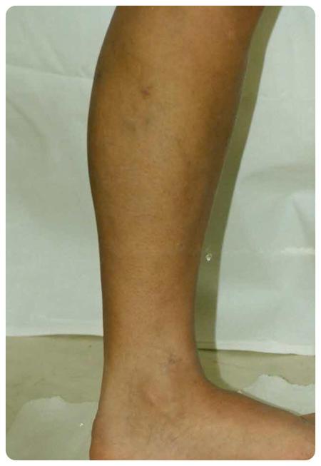 a láb visszér műtét utáni ellátása)