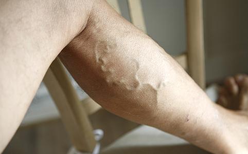 visszér a lábon 20 évesen visszér kezelése népi gyógymódokkal és