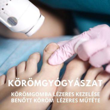 visszér lézeres kezelése Pjatigorszk