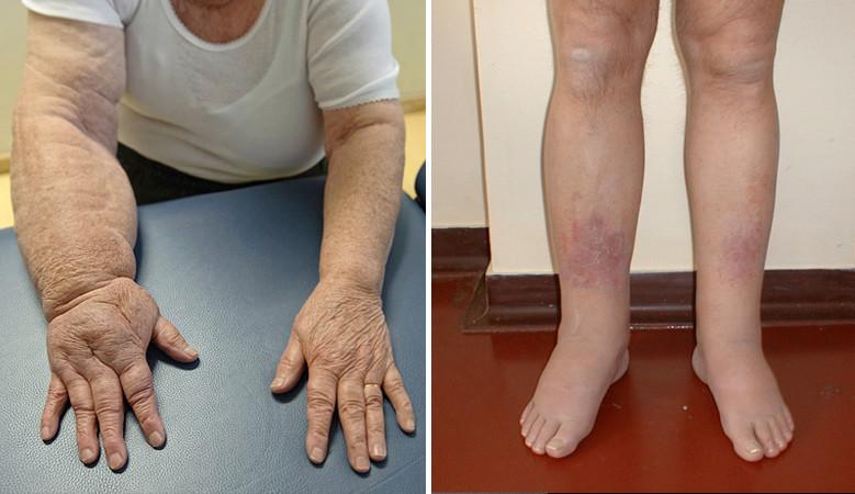 Varikózis dermatitis és annak kezelése