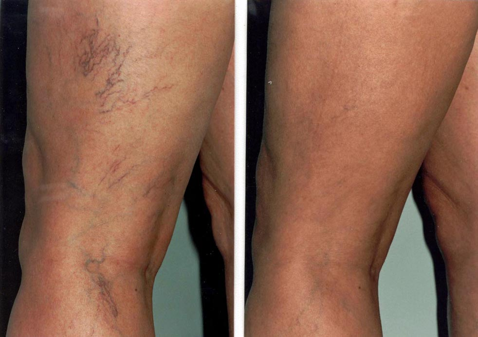 járhat a visszér műtét után visszér láb fájdalomcsillapító