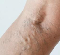 a viselt lábakon lévő visszerektől visszér, mit kell tenni, hogyan kell kezelni