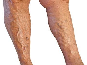 visszeres sebek esetén a lábakon történő kezelés gyakorlatok visszér a vízben