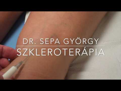 hatékony gyógymód a visszerek a lábakon melyik krém a visszér ellen jobb