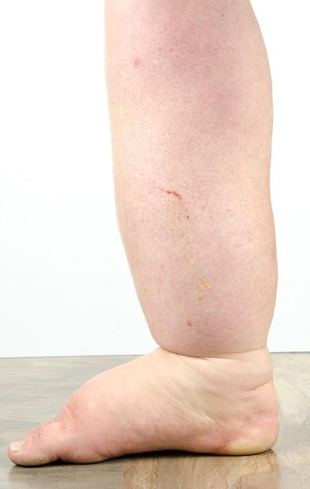 térdfájás a visszerek miatt a gerinc epidurális vénáinak visszér
