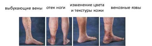 mi hígítja a visszér vérét)