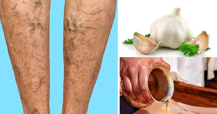80+ Best Otthoni gyógymódok images | természetes egészség, egészség, egészség tanácsok