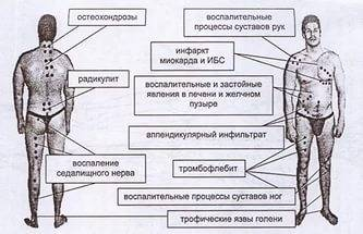 hirudoterápiás séma a piócák visszértágulására)
