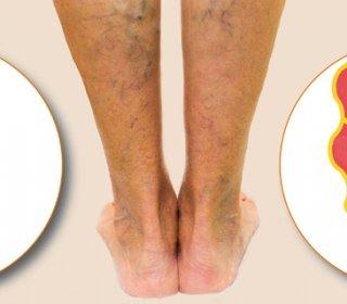 amputált láb visszeres