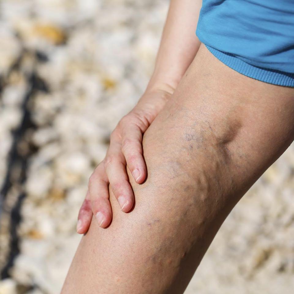 gél visszérgyulladás a lábakon véna intézet nem visszeres