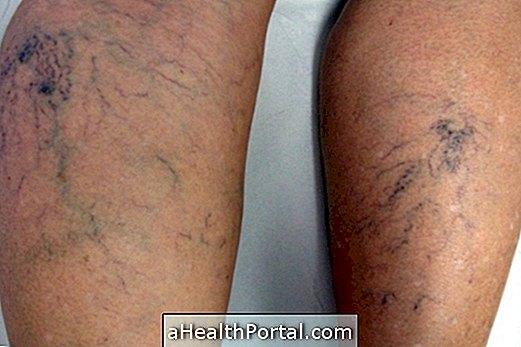 a visszér tünetei férfiaknál fotó