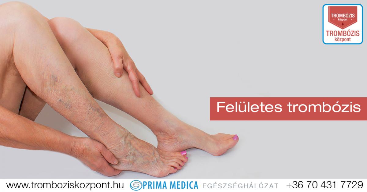 vérrög a láb varikózisában
