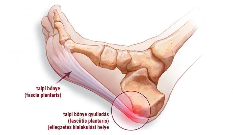 a lábak varikózisának kezelése a kezdeti szakaszban)