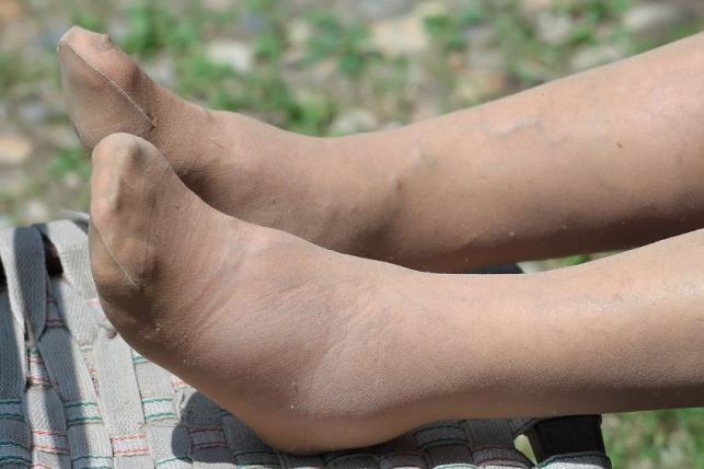 visszér a láb alján