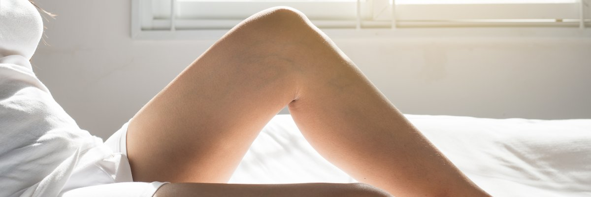 cikória a lábak visszérrel)