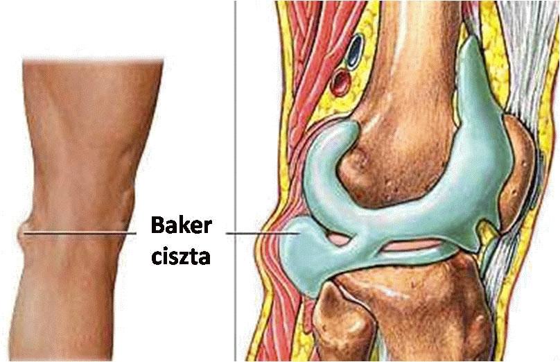 visszér a férfiaknál bekövetkezőtől kezelje a fejeken lévő visszerek a lábakon