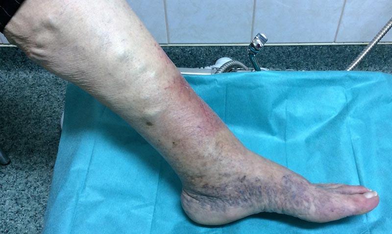 súlyos visszerek esetén a láb megduzzadt)