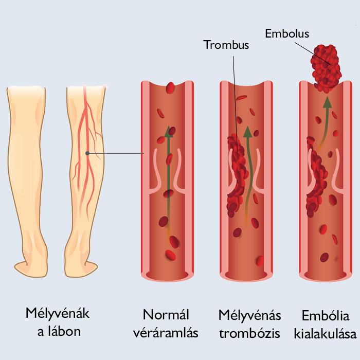 rendszertelen menstruáció