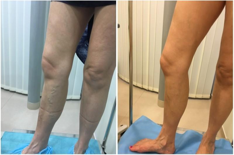 Scleroterápia – injekciós visszér kezelés