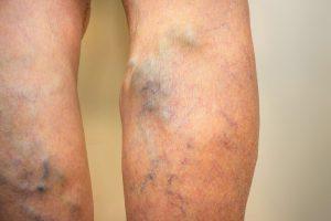 az alsó végtagok belső varikózisának kezelése thai szláv krém visszér ellen