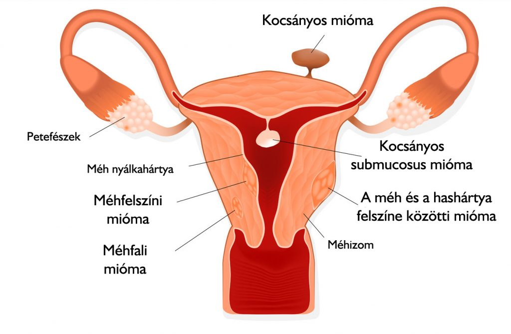 nőknél a kismedencei szervek varikózisai)