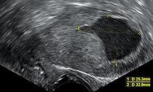 endometrium hyperplasia visszeres kezeléssel visszér esetén görcsök vannak