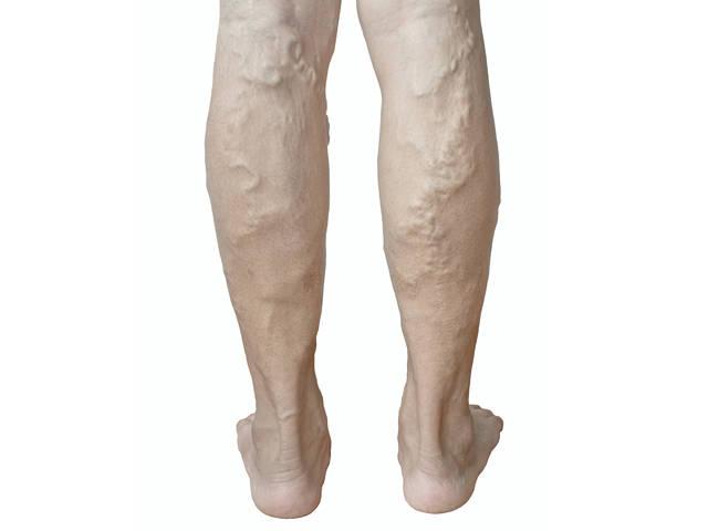 cikória a lábak visszérrel