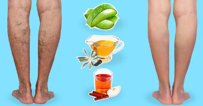 10 természetes gyógymód, hogy megszabadulj a csúnya visszerektől