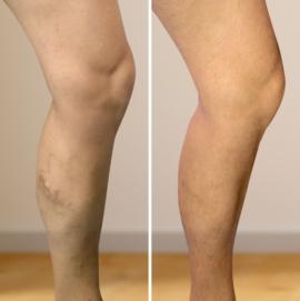 visszér kezelés fotó előtt és után)