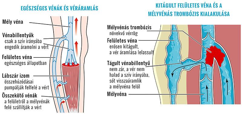 A herék varikozusának fogamzásának nehézségei