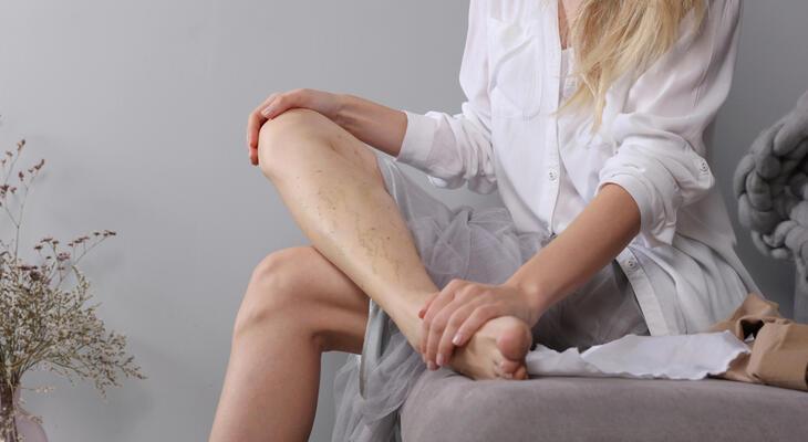 A lábak fogynak-e visszérrel. Mozgásszervi panaszok és az érszűkület