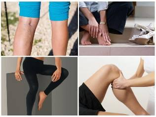 a lábakat rugalmas kötéssel kötözik a visszér ellen visszeres viszketés terhesség alatt