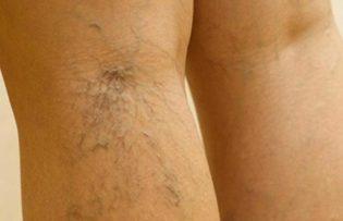 A lábak varikozusának Salavat lézeres kezelése