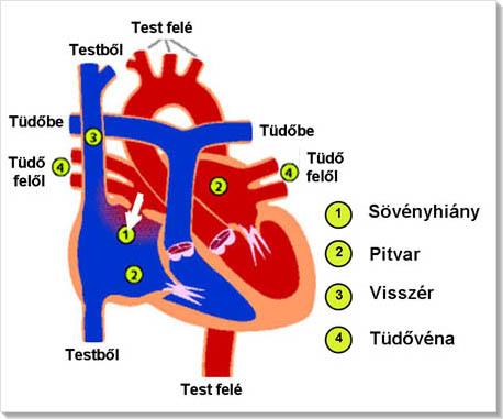 Tünetei vasovagalis syncope