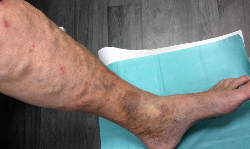 vénás vérzés a lábak visszérrel)