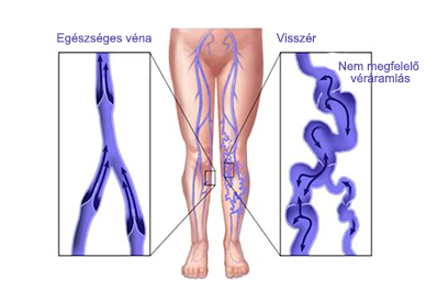 hogyan lehet megerősíteni a láb erek visszeres