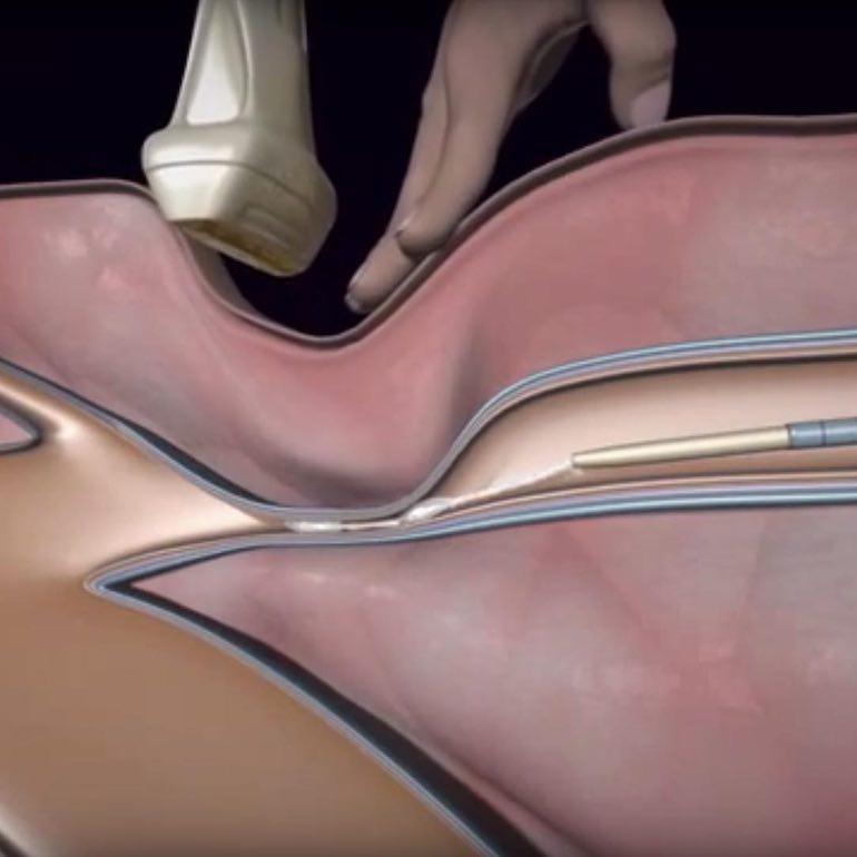 Mire számíthat a visszérműtét során?