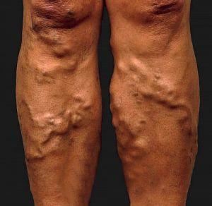 oka a visszér a lábakon kezelés