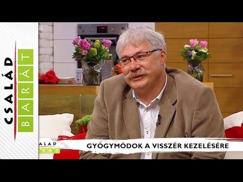 töklé visszér ellen)
