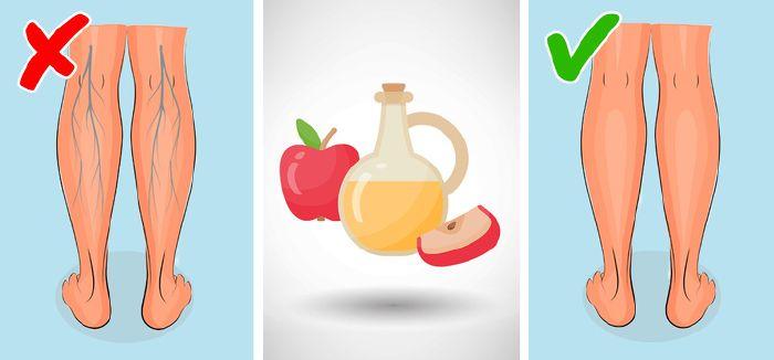 almaecet hogyan kell használni visszér