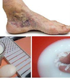 A lábak varikozásainak műtétje