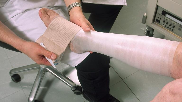 a műtét után a visszér fájt a lábakon